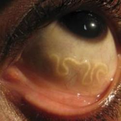 Зафиксированы случаи обнаружения экзотических червей в глазах и под кожей у жителей Татарстана