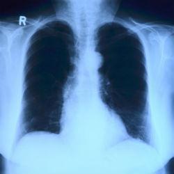 Больной туберкулезом житель Татарстана заразил двух соседских детей