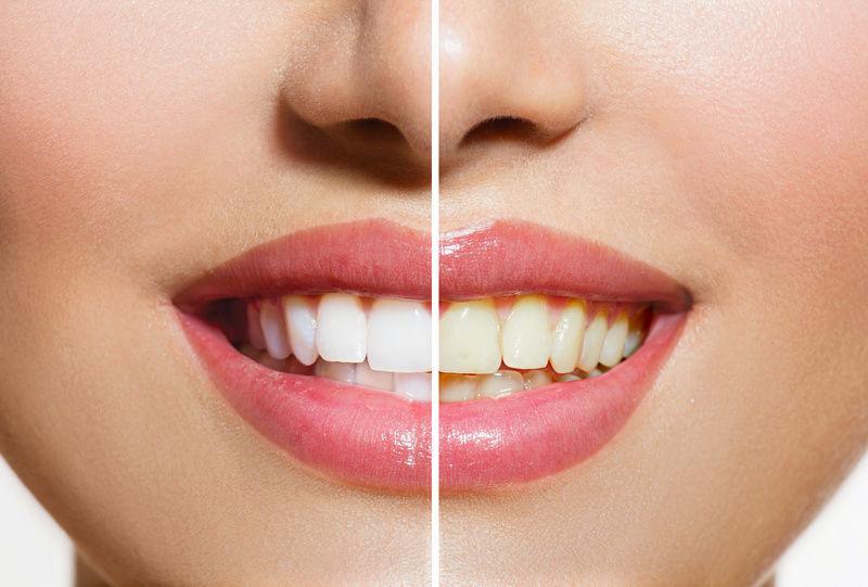 Фотоотбеливание зубов для вашей белоснежной улыбки